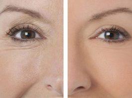 Подборка лучших масок от морщин вокруг глаз после 40 лет
