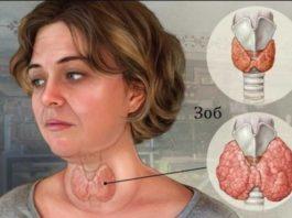 Узловой токсический зоб — просто накопала корни одуванчика ранней весной и избежала удаления щитовидки